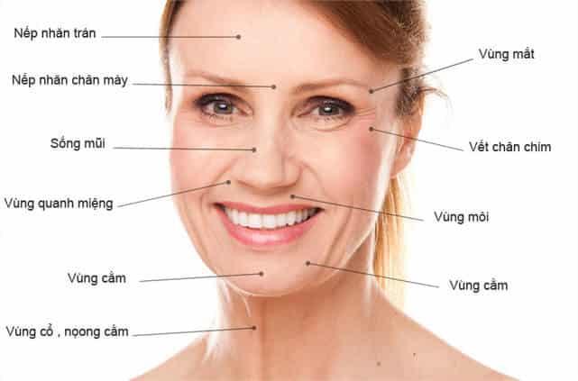 các vùng da dễ bị lão hóa