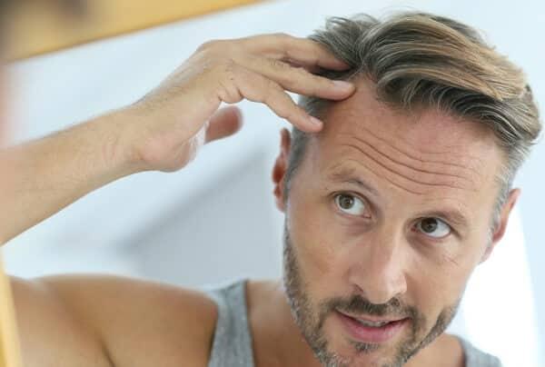 thuốc mọc tóc tốt nhất cho nam giới