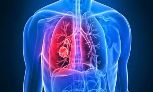 Hiệu quả vượt ngoài mong đợi với top 5 thực phẩm chức năng tốt cho phổi