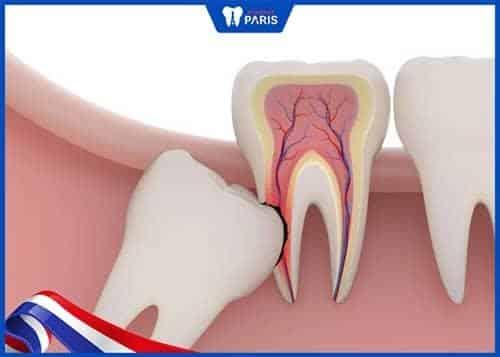 hình ảnh Nhổ răng khôn có ảnh hưởng gì không? - số 1