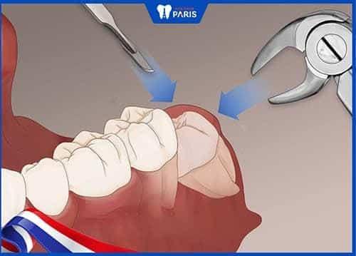 hình ảnh Nhổ răng khôn có ảnh hưởng gì không? - số 2