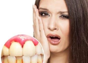hình ảnh 7 cách chữa chảy máu chân răng hôi miệng tại nhà hiệu quả - số 3
