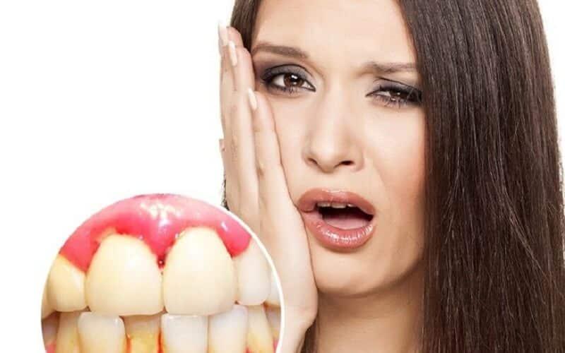 hình ảnh 7 cách chữa chảy máu chân răng hôi miệng tại nhà hiệu quả - số 1